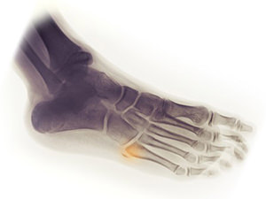 Foot Avulsion Fracture Treatment Information