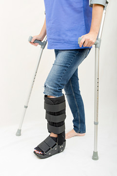 Foot Avulsion Fracture Facts & Info